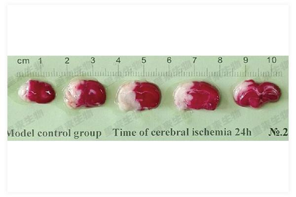 局灶性腦缺血再灌注損傷模型-TTC染色-